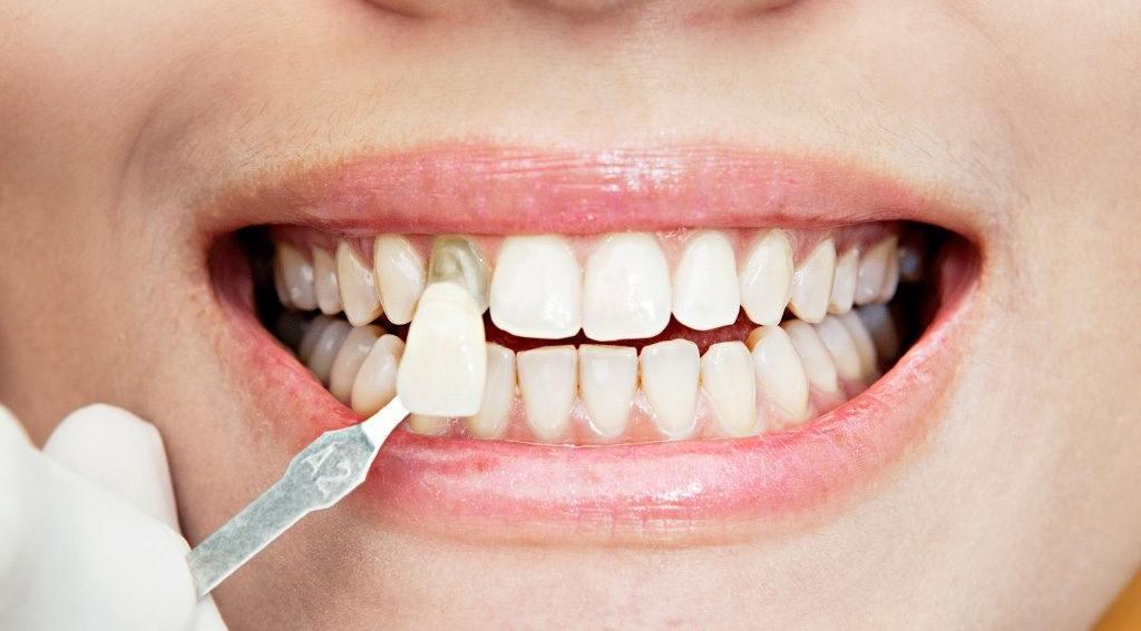 Tratamientos Estéticos en Odontología