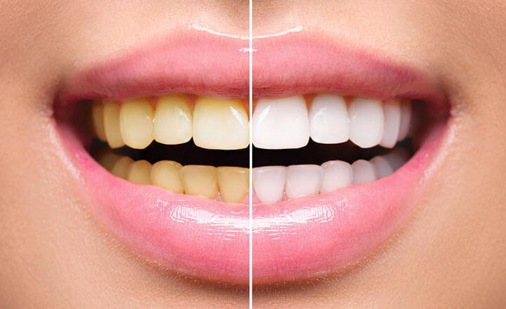 Blanqueamiento Dental ¿puedo hacerme este procedimiento?